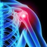 is_150219_shoulder_pain_800x600